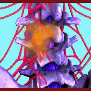 Acute facet joint pain