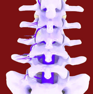 causes of facet joint pain