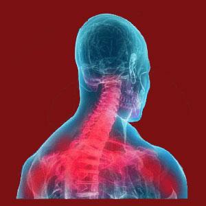 facet joint compressing a nerve