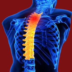 Disability from Facet Joint Pain