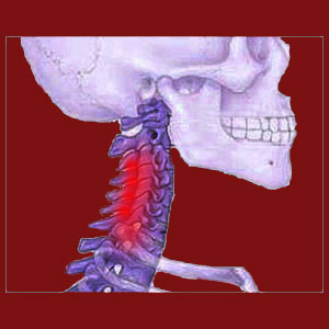 Facet joint neck pain