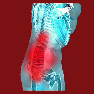 Facet Joint Pain Bending