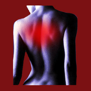 Facet joint upper back pain