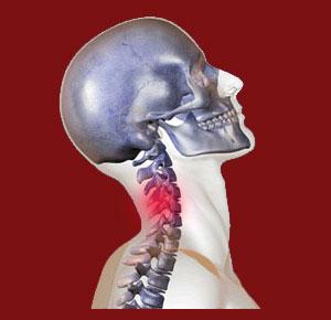 Neck Extension Facet Joint Pain