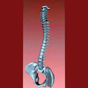 Spinal Fusion for Facet Joint Pain